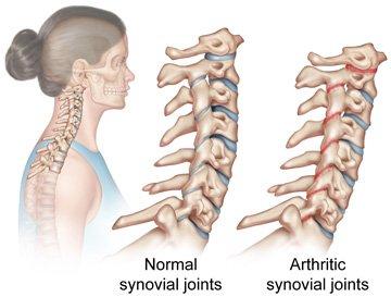 Rheumatoid Arthritis Altair Health