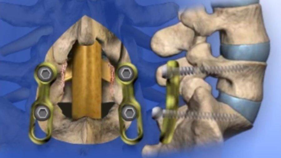 Posterior Lumbar Interbody Fusion (PLIF)