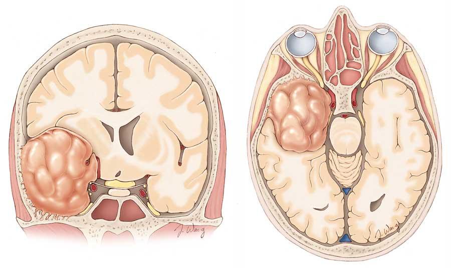 Sphenoid Wing Meningiomas