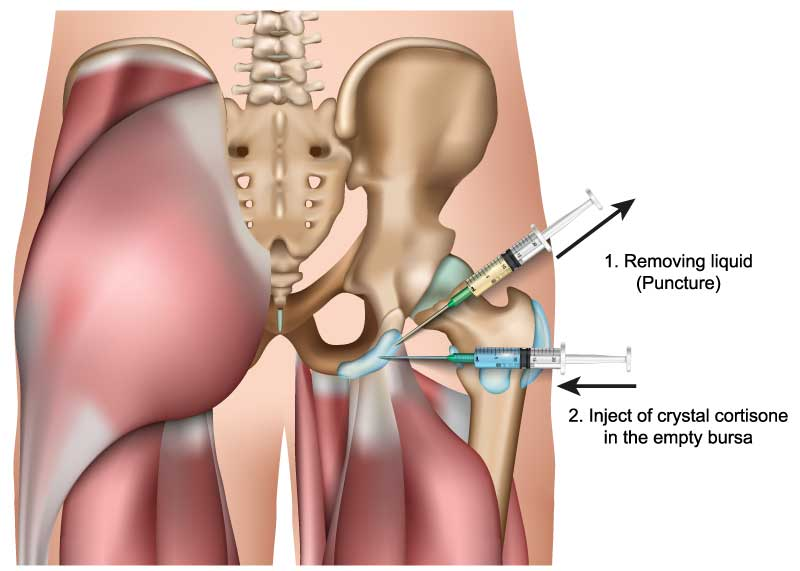 Steroid injection in hip bursa buy steroids for horses